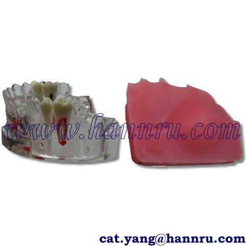 Dental model POS-02 Incision / Pus Removal Model - Hann Ru